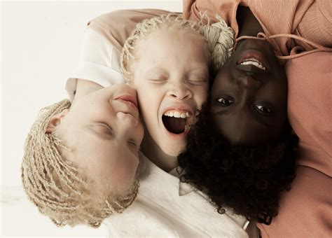 Meet the Bawar sisters, the new albino stars of the