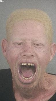 Albinos - Are they Evil?